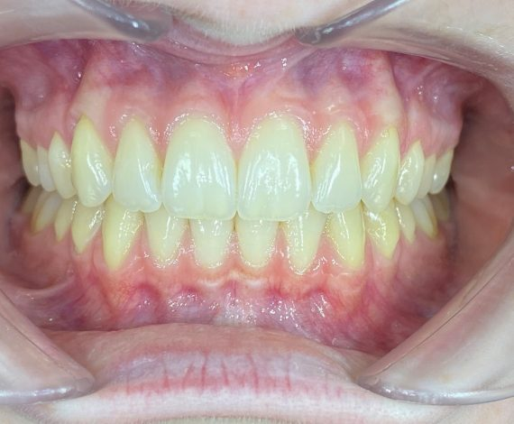 Invisalign Ortho After